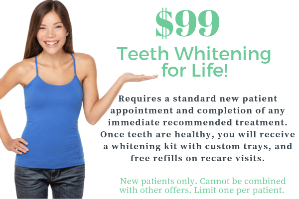 $99 teeth whitening for life