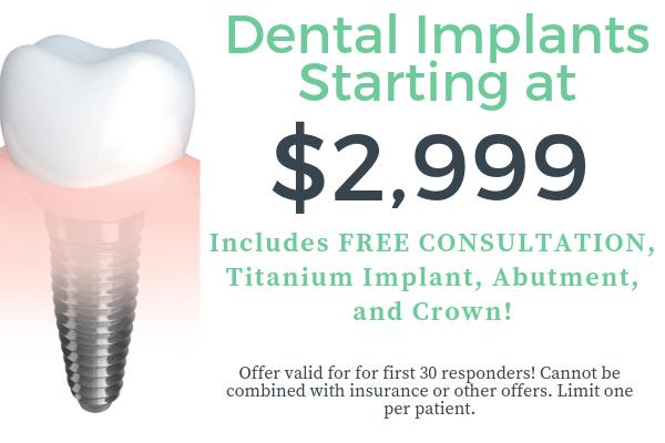 dental implants starting st $2999